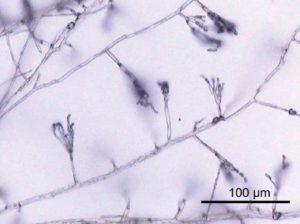 真菌(カビ)